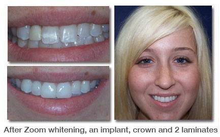 After Zoom whitening, an implant, crown and 2 laminates