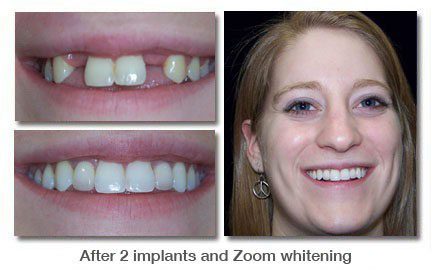 After 2 implants and Zoom whitening
