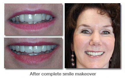 After complete smile makeover