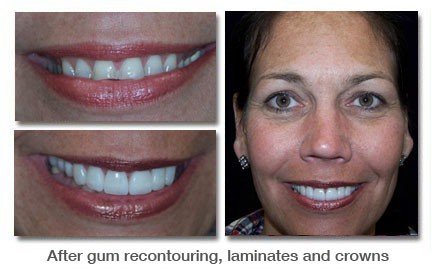 After gum recontouring, laminates and crowns