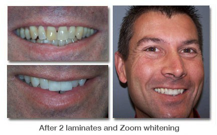 After 2 laminates and Zoom whitening