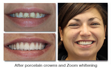 After porcelain crowns and zoom whitening