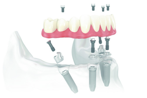 All-on-4® Treatment Concept diagram at Wanserski Dental Center for Complex Dentistry