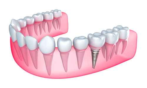 Times to Pick Implants Over Dentures for Improved Oral Health