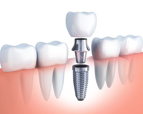 Rendering of a single tooth dental implant at Wanserski Dental Center for Complex Dentistry in Wausau, WI
