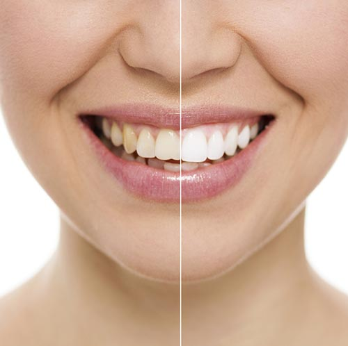 Ways of Restoring the Look of Stained Teeth